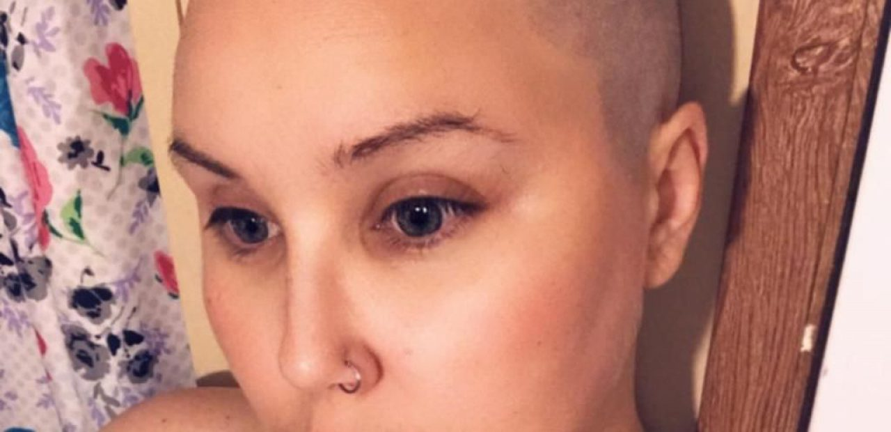 Permanently Bald and Chelsea's Mother