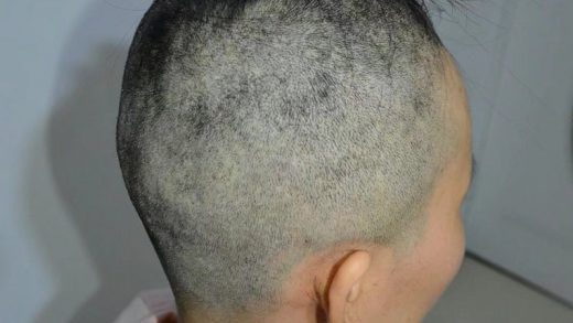 Crewcut in Egypt